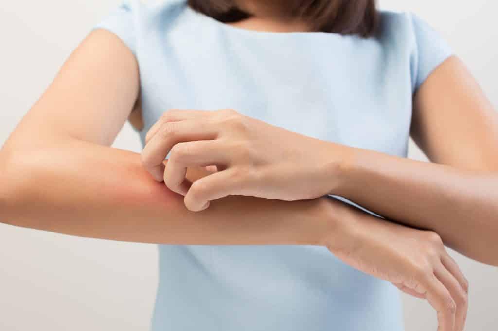 Vrouw krabt haar arm door jeuk